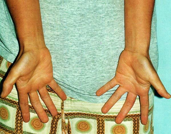 Лечение аллергических дерматитов.